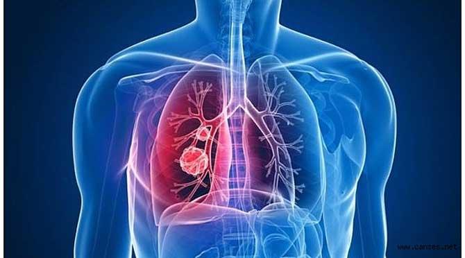 En Sık Rastlanan Akciğer Hastalığı KOAH