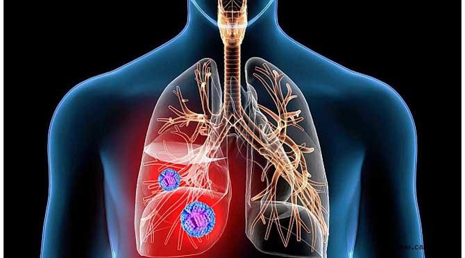 Akciğer Nodüllerinin Düzenli Kontrollerini Aksatmayın
